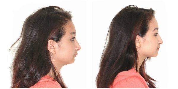 лицо до и после брекетов (2)