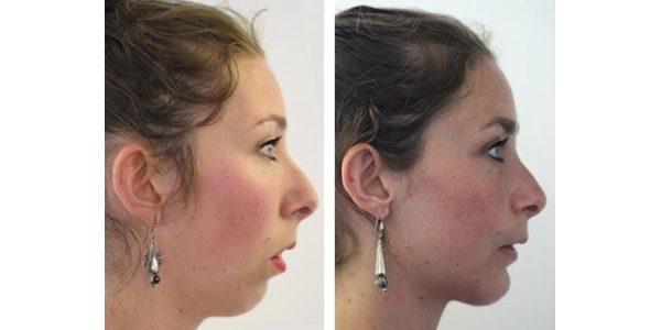 лицо до и после брекетов (3)