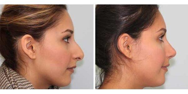 лицо до и после брекетов (5)