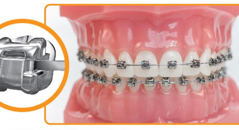 Болят зубы после подтяжки брекетов — нормально ли это?