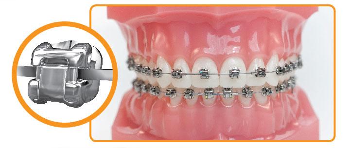 Болят зубы в брекетах: причины, как облегчить боль