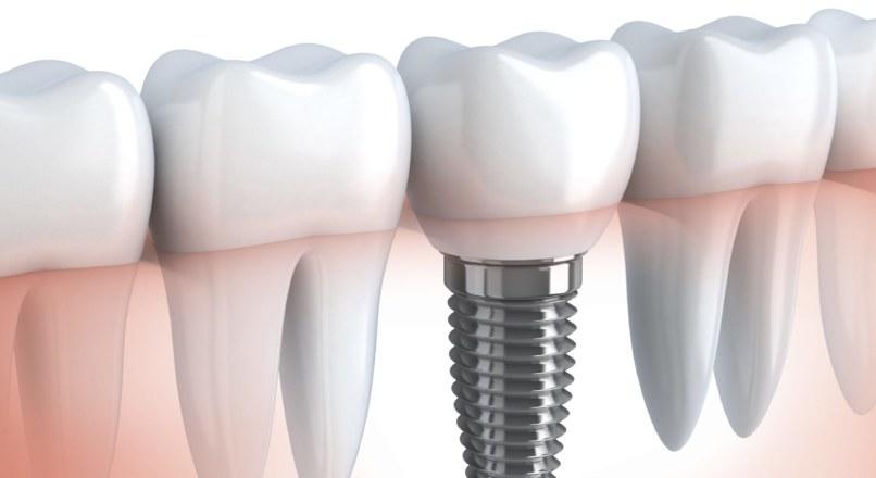Новые зубы без имплантов — такое возможно?