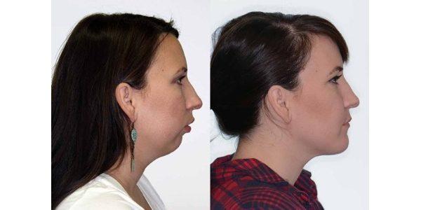 лицо до и после брекетов (1)