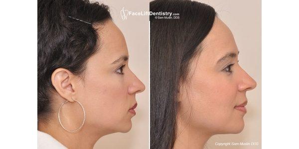 лицо до и после брекетов (4)