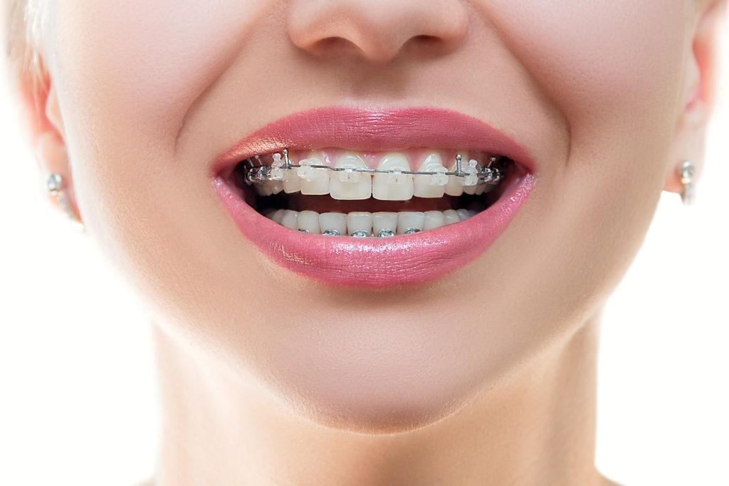Болят зубы при ношении брекетов: что считается нормой и когда обращаться к врачу