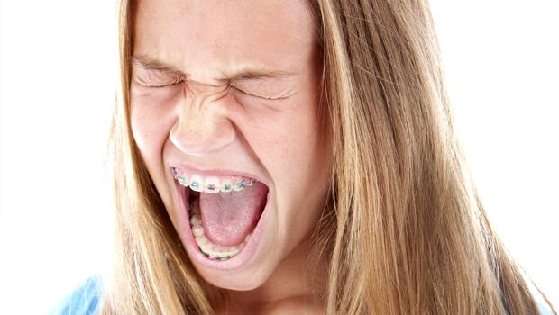 Зудят зубы в брекетах