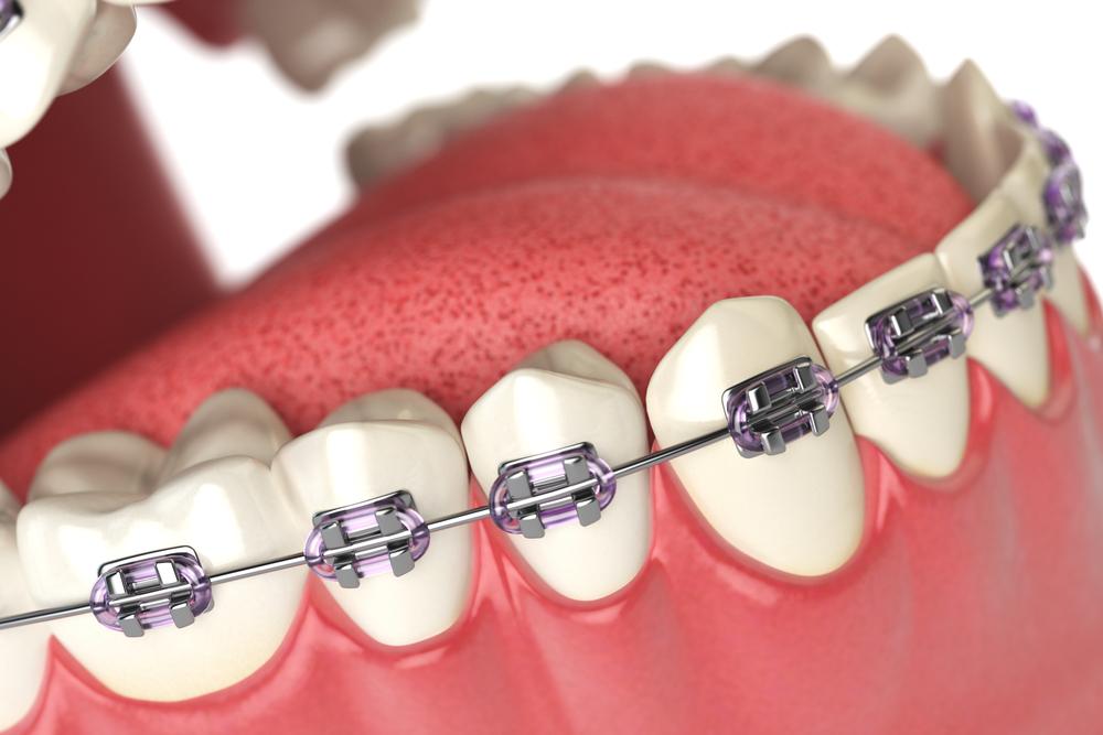 Откуда берутся следы на зубах от брекетов и как их удалить