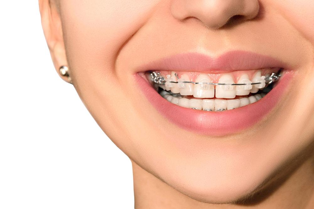 Сколько носят брекеты на зубах – минимальный и максимальный срок