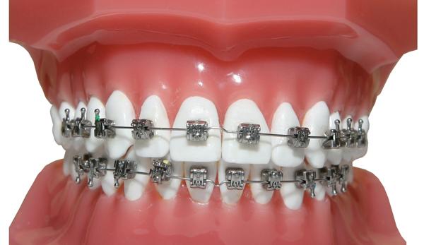Самые дорогие методики лечения зубов