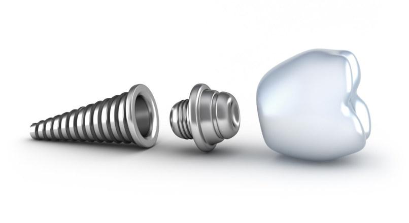 Удаление зуба и установка импланта в один день
